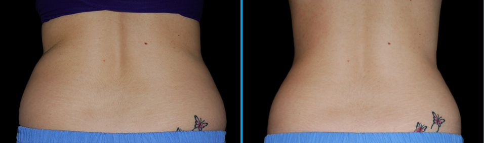 How Long Does CoolSculpting Last?