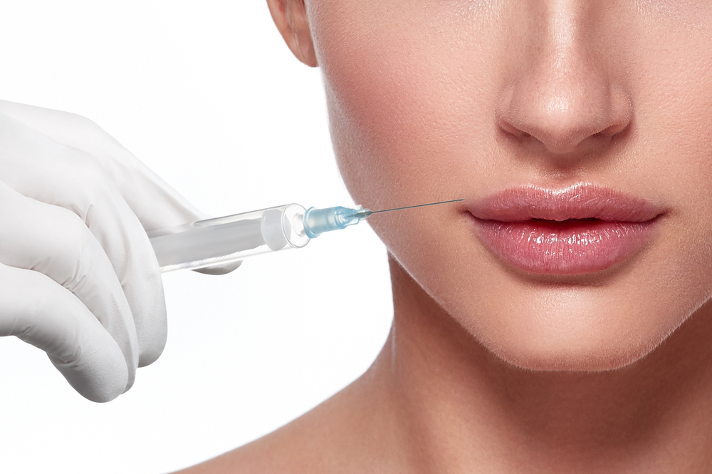 Lip Filler: Fact vs. Fiction