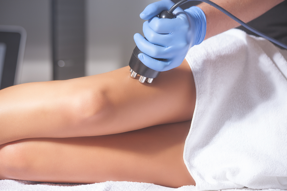 Cellulite Treatment Northern Virginia